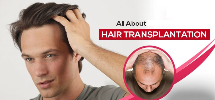 Which do's and don'ts need to be followed after the hair transplantation?